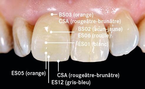 Ill. 8 : La couronne a été caractérisée individuellement avec les colorants VITA AKZENT Plus.
