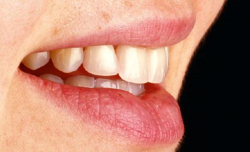 Abb. 14: Die inzisalen Restaurationen harmonierten jetzt mit dem Lippenverlauf.