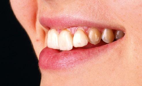 Abb. 3: Der Zahnbogen harmonierte nicht mit dem Lippenverlauf.