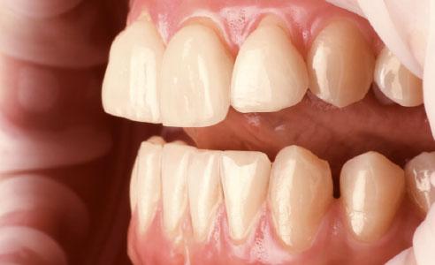 Abb. 4: Die Zahnachsen der Inzisiven waren irregulär. Die Veneers wirkten klobig und aufgesetzt.
