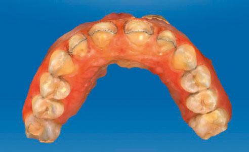 Abb. 8: Der Aufblick zeigt, wie im Zuge der Präparation der Zahnbogen vornivelliert werden konnte.