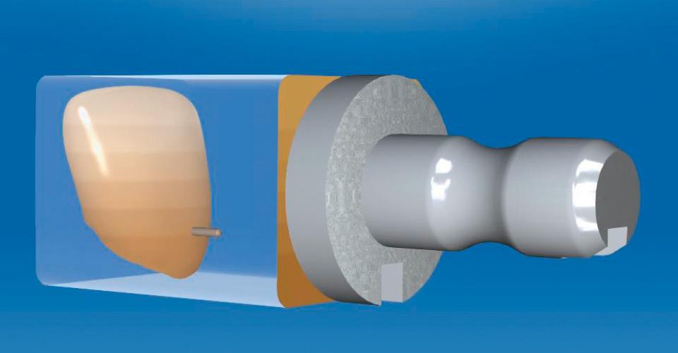 Abb. 11: Mit der Positionierung der Veneers im virtuellen Rohling können der Transluzenz- und Farbverlauf gesteuert werden.