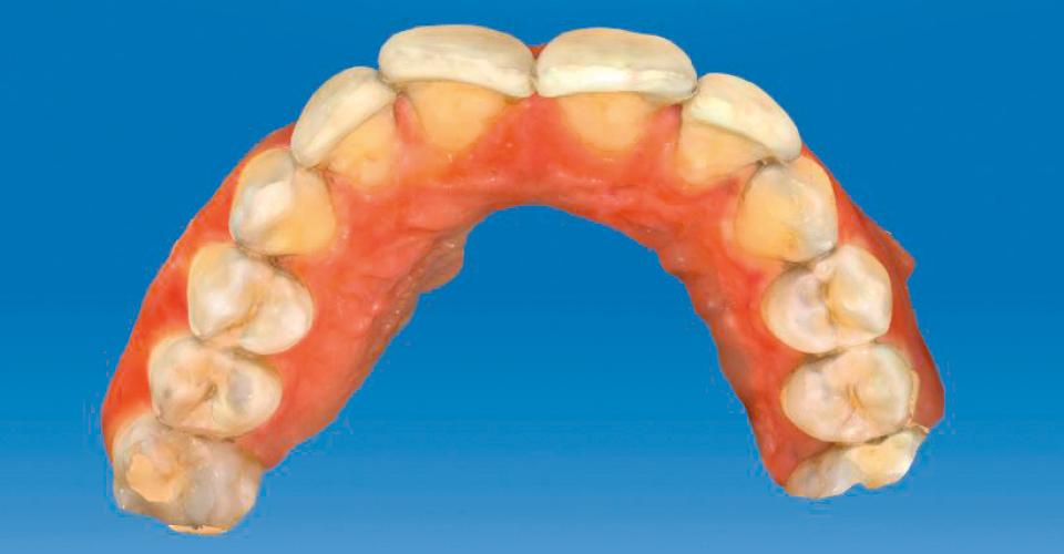 Abb. 5: Der Scan der Ist-Situation verdeutlicht den unruhigen Verlauf des Zahnbogens.