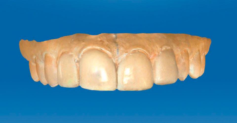 Abb. 6: Ein Wax-up gab Orientierung und half in digitalisierter Form bei der späteren Konstruktion.