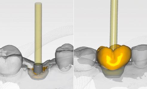 Abb. 9: Die virtuelle Titanklebebasis als Schnittstelle zwischen Implantat und hybridkeramischer Abutmentkrone. Abb. 10: Die aus VITA ENAMIC IS konstruierte Abutment-krone auf der Titanbasis.