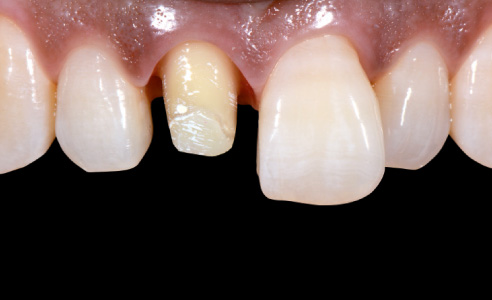 Fig. 1: Previously: Full crown dissection on tooth 11 after endodontic treatment.