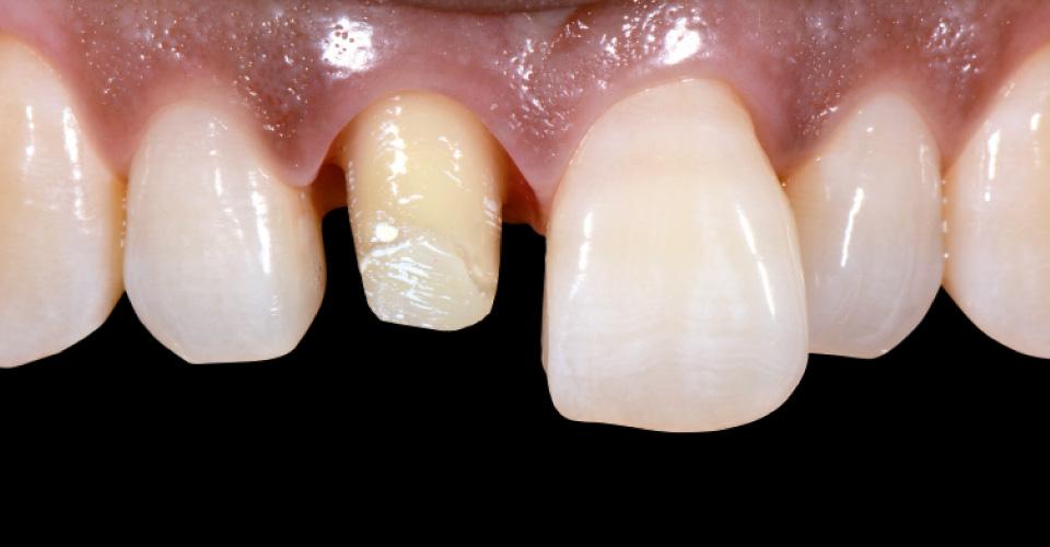Ill. 1 : Avant : Reconstitution coronaire complète de la 11 après un traitement endodontique.