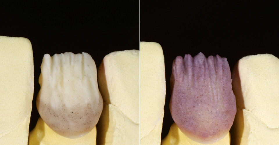 Fig. 4: Cervical fluorescence (reddish/brownish) was created with EL3, a lighter incisal effect with EL1. Fig. 5: CHROMA PLUS 2 was layered for a warm hue and control of the lightness.