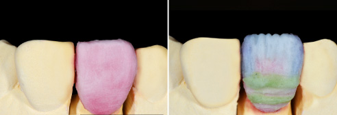 Fig. 6: Complete crown layering with DENTINE 2M1 prior to the cut-back. Fig. 7: EE1 (whitish translucent) was added in points to integrate thin, white lines.