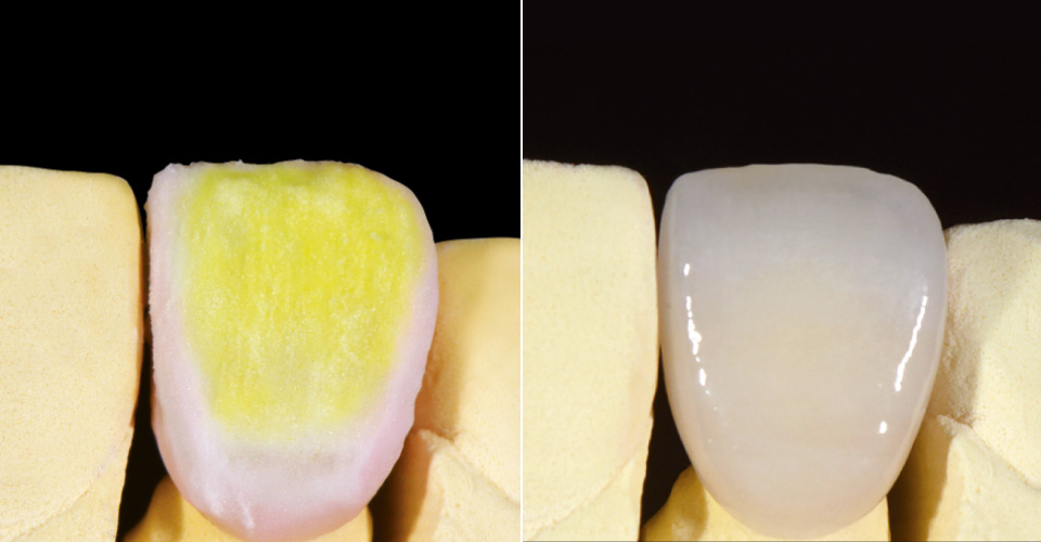 Fig. 9: Halo effect from EE2 and BASE DENTINE. Finalization with thin layers of ENL, END and WIN. Fig. 10: The finished full ceramic crown on the master model after glaze firing and polishing.