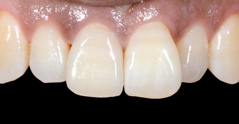 Ill. 11 : Après : Restauration finale de la 11 ; la patiente était satisfaite de ce résultat très esthétique.