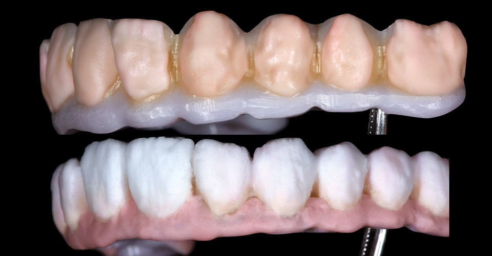 Fig. 12: Recubrimiento de las facetas dentales con BASE DENTINE A2 y A3.