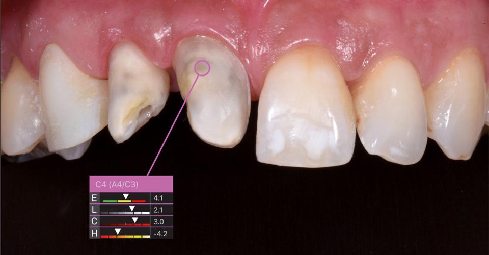 Fig. 1: Tras un accidente, los dientes de las regiones 11 a la 13 estaban  desvitalizados y debían tratarse con carillas. Dado que los muñones dentales 11 y 12  eran demasiado grises, fueron tratados previamente mediante blanqueamiento interno.