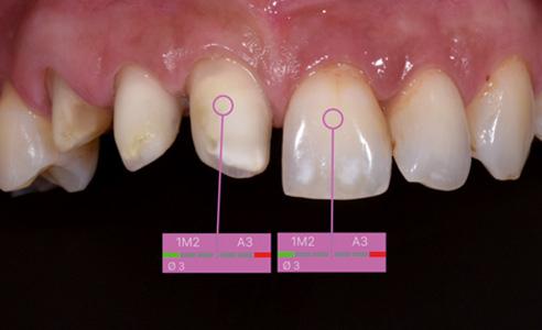 Fig. 2: Tras el blanqueamiento se obtuvo un color de los muñones armonizado. Este es tan importante para el protésico como el color del diente adyacente, y también puede comunicarse mediante la aplicación o por correo electrónico.