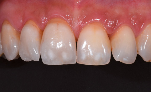 Fig. 3: The end result after fixation. The veneers were manufactured by Dental Technician Alex Keller (Schönenberger Dentaltechnik, Glattbrugg, CH). The shade measuring device and the communication app were a valuable aid in this case.