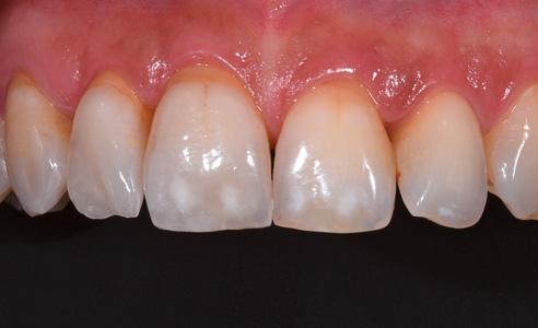 Fig. 3: El resultado final tras la fijación. Las carillas fueron confeccionadas por el protésico dental Alex Keller (Schönenberger Dentaltechnik, Glattbrugg, Suiza). El espectrofotómetro y la aplicación de comunicación prestaron una valiosa ayuda en este caso.