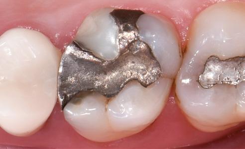 Fig. 2: Insufficient amalgam filling in tooth 16.