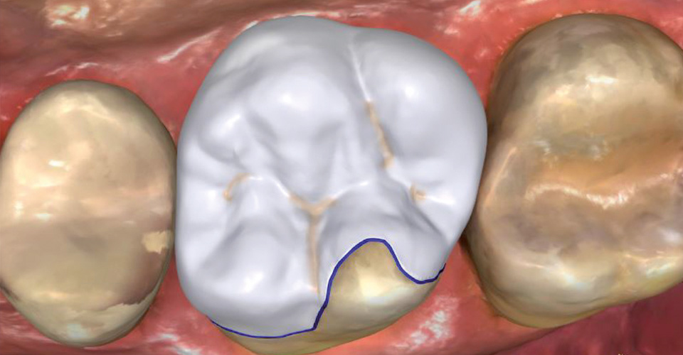 Fig. 4: The virtual partial crown created with the CEREC software.