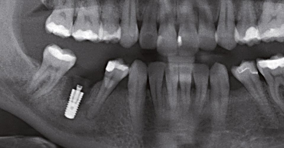 Fig. 3: Estado tras el implante en la región 36.