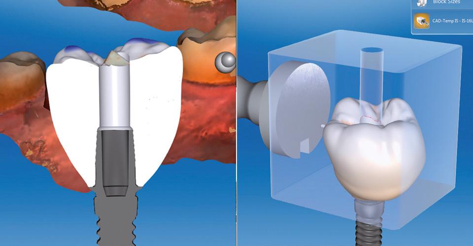 Fig. 5: El diseño virtual del perfil de emergencia estabiliza y conforma las estructuras gingivales. Fig. 6: Posición virtual de la corona sobre pilar en la pieza en bruto de VITA CAD-Temp IS.