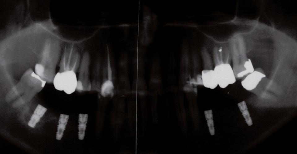 Fig. 1: Quadro radiografico della situazione iniziale.