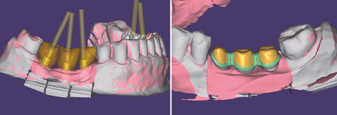 Fig. 3: Construction of the implant crowns in regions 45, 46, and 47. Fig. 4: Design of the substructure.