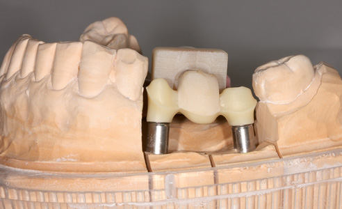 Fig. 5: The substructure is milled from pre-stained zirconia.