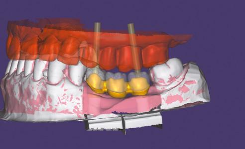 Fig. 6: Sulla base della la scansione della sottostruttura vengono progettate le sovrastrutture di rivestimento.