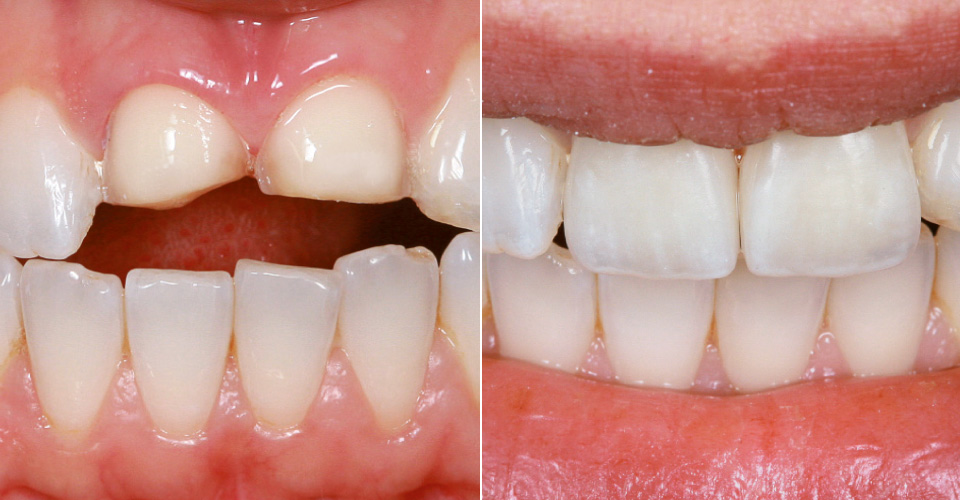 Fig. 1: Initial situation: Clinical situation after veneer preparation on 11 and 21.