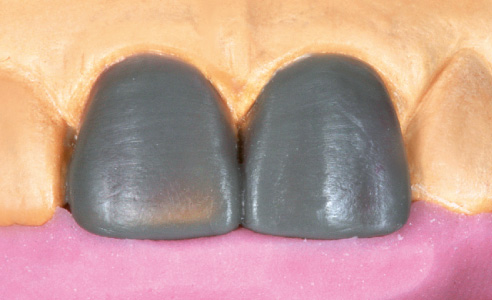 Fig. 3: Situation model with idealized wax-up and palatal silicon key.