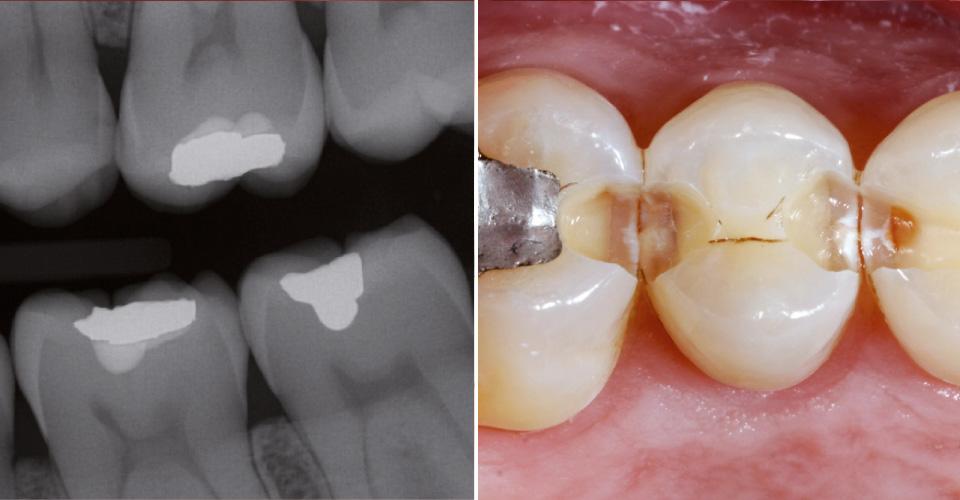 Fig. 2: Situación radiológica. Fig. 3: Si è iniziato a preparare con cautela una cavità per otturazione, ma nell'ambito dell'escavazione si sono evidenziati difetti clinicamente estesi e lesivi.