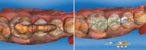 Ill. 5 : Un scanner intra-oral a permis de réaliser une empreinte numérique Ill. 6 : Avec le logiciel Biogenerik, les surfaces de mastication ont été reconstituées.
