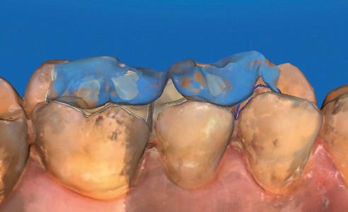 Fig. 7: Se incluyó el maxilar antagonista para comprobar los puntos de contacto.