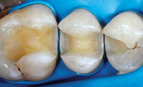 Ill. 9 : Pour le scellement adhésif, une digue dentaire assure un assèchement absolu.