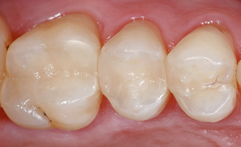 Fig. 10: Result: A defect-oriented restoration with composite fillings was planned.  The result was a minimally invasive restoration with VITA ENAMIC inlays.
