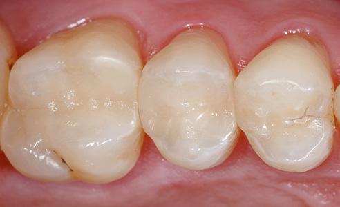 Fig. 10: Resultado: Estaba prevista una restauración orientada a los defectos mediante obturaciones de composite. El resultado fue una restauración mínimamente invasiva mediante inlays de VITA ENAMIC.