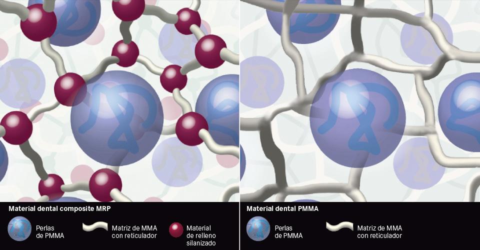 Fig. 3a/b: Comparación entre composite MRP (izquierda) y PMMA (derecha) mediante representaciones esquemáticas de la estructura del material.