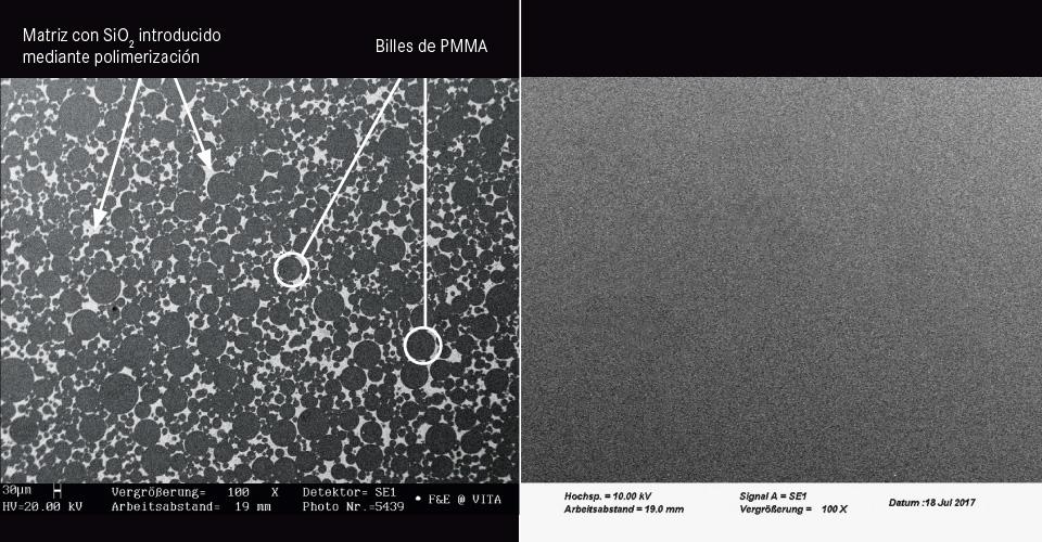Fig. 3a/b: Comparación entre composite MRP (izquierda) y PMMA (derecha) mediante imágenes obtenidas con microscopio electrónico de barrido (MEB).