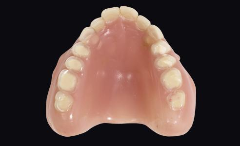 Abb. 3: Die ästhetisch und funktionell insuffizienten Prothesen zeigten massive okklusale Abrasionen.