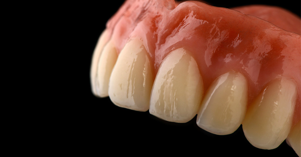 Fig. 1: The layering of the denture tooth follows the shade gradient of natural teeth.