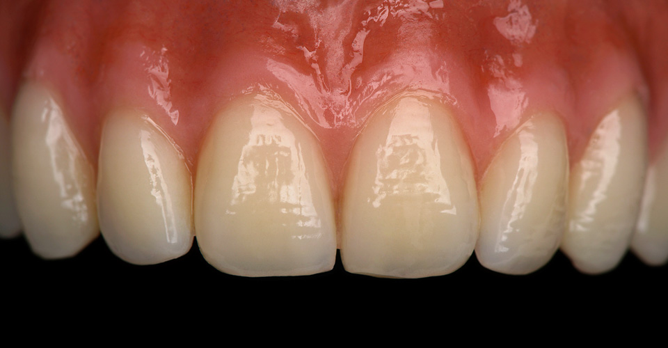 Fig. 2: The anterior tooth is very beautifulyl shaped, especially concerning the harmonious length/width ratio.