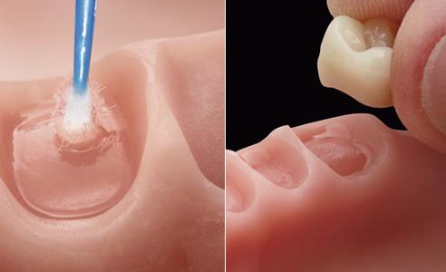 Abb. 11: Die gefrästen PMMA-Alveolen wurden mit VITA VIONIC BOND benetzt… Abb. 12: …und die basal abgestrahlten Zähne passgenau in der Kavität adhäsiv fixiert.