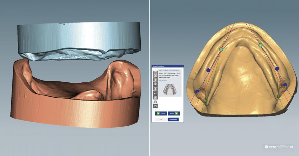 Abb. 2: Die digitalisierten Modelle in der klinisch ermittelten vertikalen Dimension. Abb. 3: Die Modellanalyse wurde mit der Ceramill Mind-Software nach TiF durchgeführt.