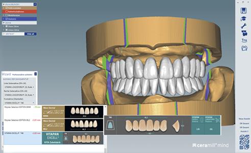Abb. 4: Die virtuelle Aufstellung erfolgte nach der Zahnauswahl per Knopfdruck.