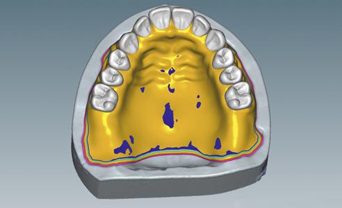 Abb. 5: Funktionsränder und Dimensionierung der Prothesenbasis wurden digital designt.