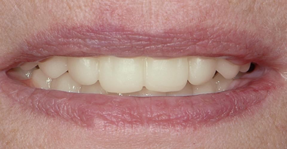 Abb. 8: Die CAD/CAM-gefertigte Wachsanprobe aus VITA VIONIC WAX white im Mund der Patientin.