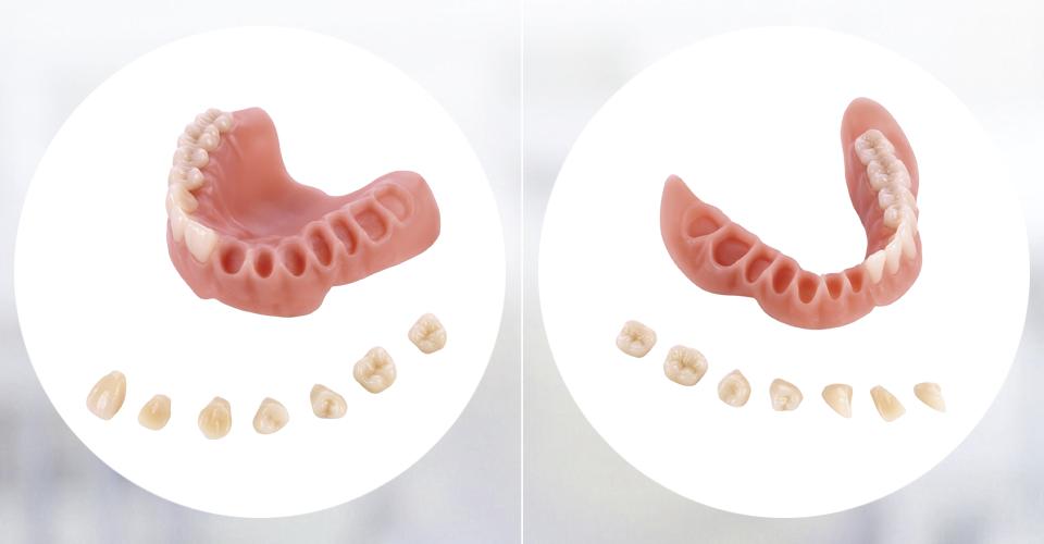 Fig. 6: Los dientes protésicos modificados mediante CAM presentan una elevada precisión de ajuste a los alveolos de la base.
