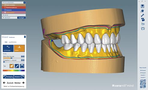 Fig. 1: Ejemplo de diseño CAD de prótesis mediante el software Ceramill Mind.