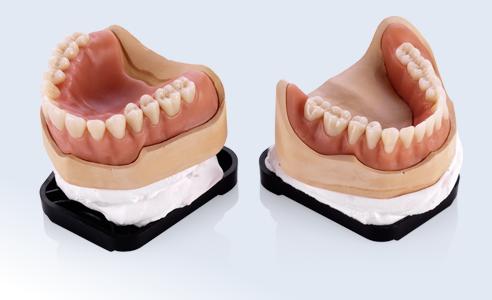 Fig. 7: La fijación sencilla y segura posibilita la confección sumamente racional de las prótesis.