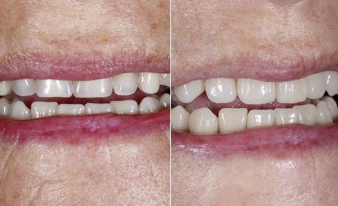 SITUACIÓN DE PARTIDA: Las antiguas e insuficientes rehabilitaciones presentaban un desplazamiento de la línea media hacia la derecha, así como disonancias funcionales. Los dientes presentaban un aspecto desgastado, decolorado y mate. RESULTADO: La paciente quedó muy satisfecha con la naturalidad de la nueva restauración.